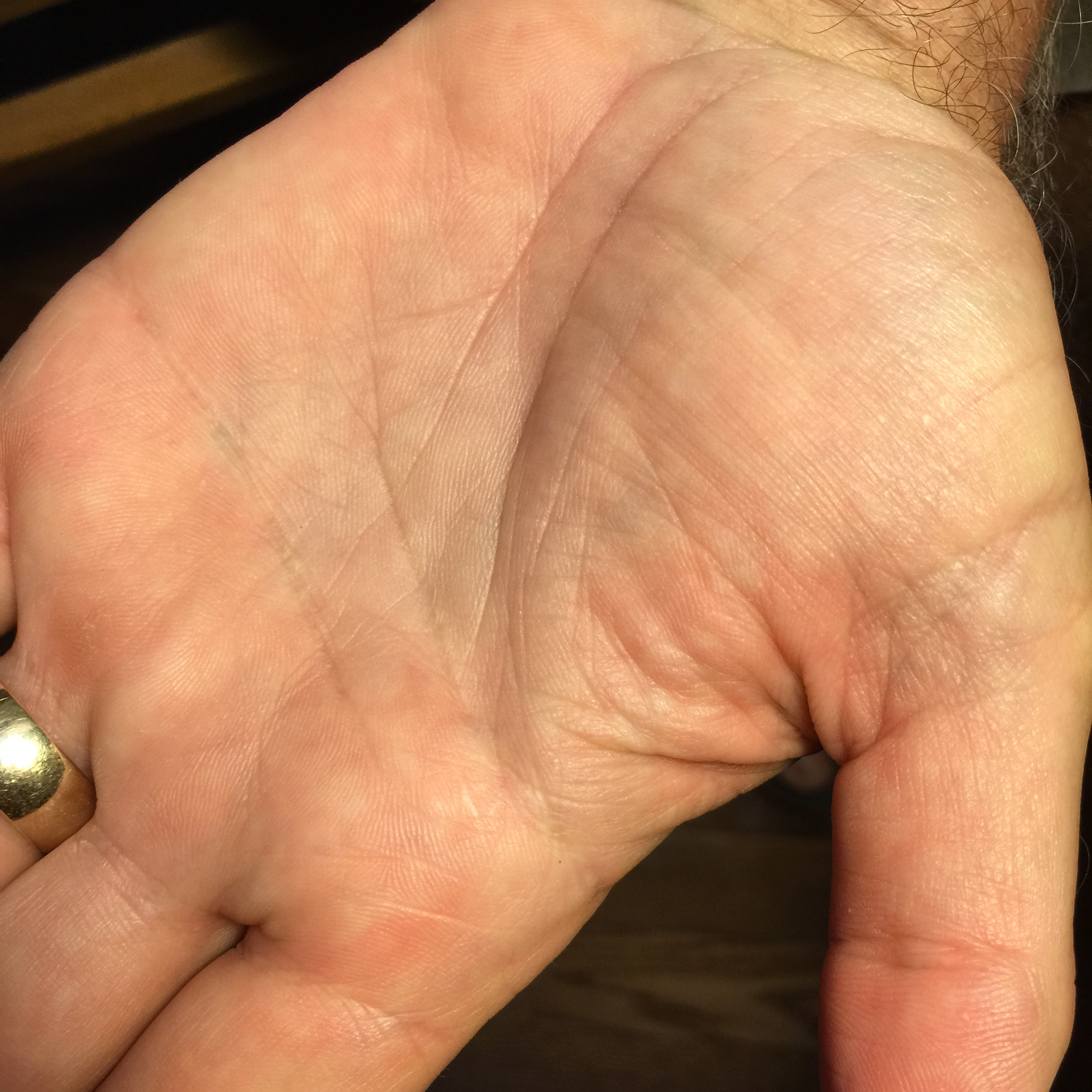 Ios Measure Around Hand With Thumb Extended